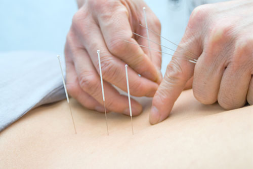 Family Chiropractic with Acupuncture, The Family Chiropractic Center of Bayonne